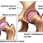 artroz_tazobedrennyh sustavov