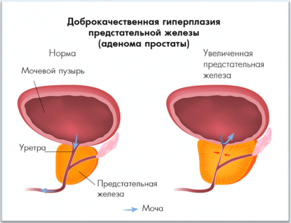 Рак предстательной 4 стадии с метастазами сколько живут