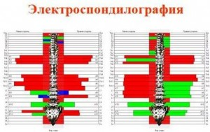 Электроспондилограмма позвоночника с функциональными блокадами