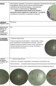 Gemoskanirovanie-protokol-zakluchenija-