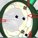 Фильтрация токсинов через лимфоузел