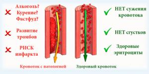 сосуд вязкость крови