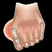 """Деформация 1-го плюсне-фалангового сустава (""""косточка""""), расширение поперечного размера стопы, деформация пальцев- признак поперечного плоскостопия."""
