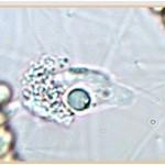 Четвертая стадия фагоцитоза — переваривание