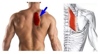 Денфанс паравертебральных мышц у больного с висцеро-вертебральным синдромом