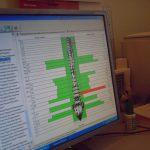 """Электроспондилография. Компьютерны комплекс функциональной экспресс-диагностики позвоночника """"Медискрин-Вертебро"""""""