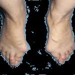 Деформация стопы при поперечном плоскостопии