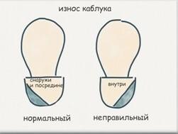 pravilnaya-i-nepravilnaya-obuv